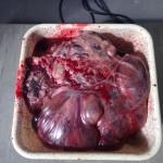 Een 9.400kg grote tumor wordt uit de buik gehaald.